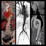 badanie-angio-tk-klatki-piersiowej-szpital-eskulap-osielsko-bydgoszcz