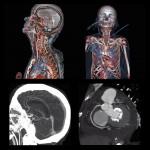 badanie-angio-tk-tetnic-mozgu
