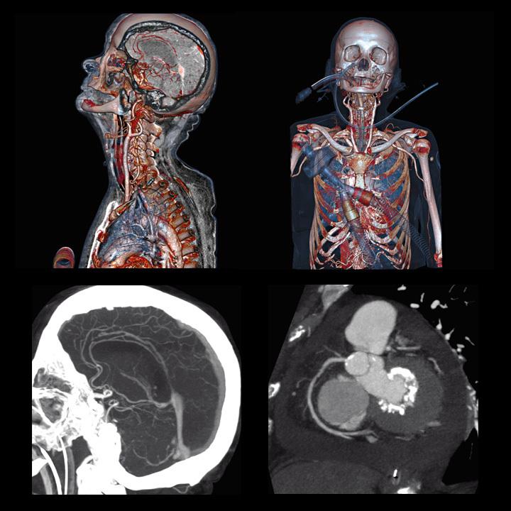 tomografia komputerowa głowy angio-tk tetnic mozgu