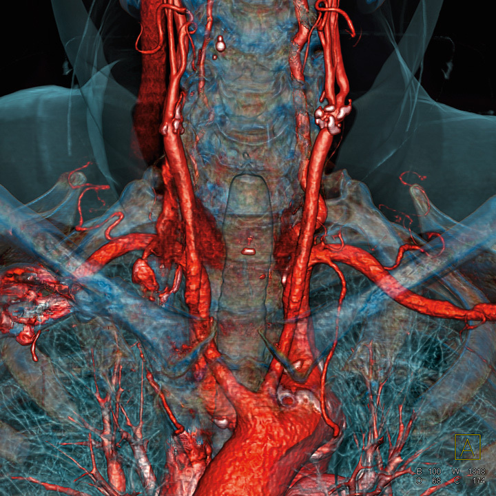 tomografia komputerowa angio-tk szyi i tetnic szyjnych bydgoszcz