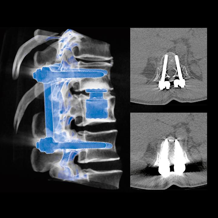 tomografia komputerowa kregoslupa bydgoszcz