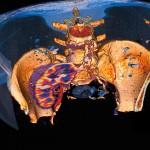 badanie-tk-nowotworow-szpital-eskulap-osielsko-bydgoszcz