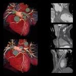 tomografia komputerowa serca, koronarografia-tk bydgoszcz