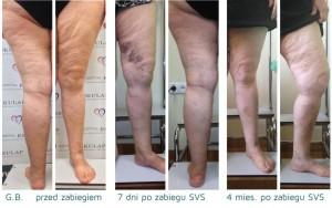 efekty-leczenia-zylakow-para-wodna-svs-gb