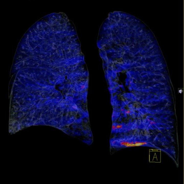 tk-płuc-i-klatki-piersiowej