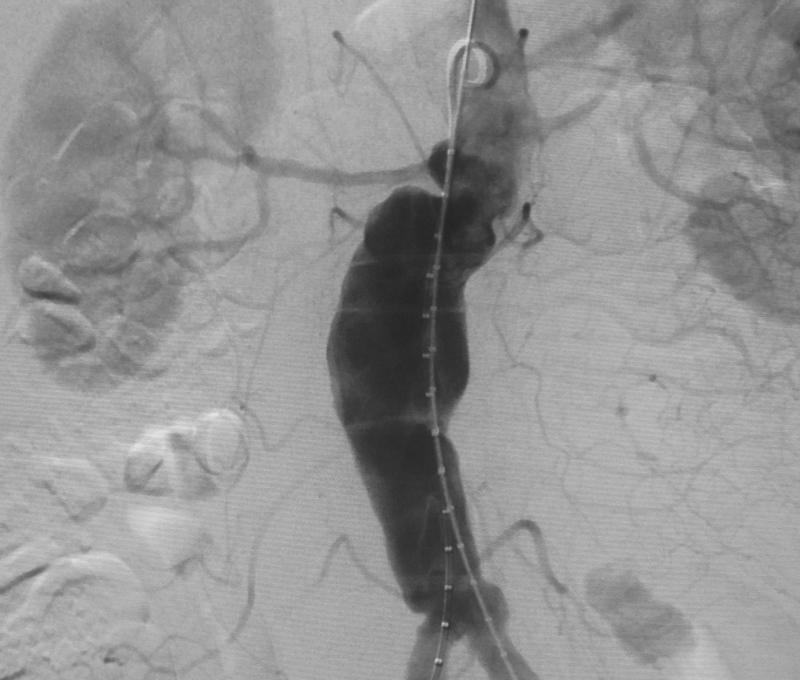 tetniak aorty brzusznej podczas wymiarowania do implantacji stentgraftu