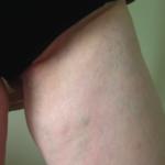 zylaki-okolic-intymnych-krocza-sromu-podbrzusza-zdjęcie
