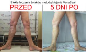 wyniki, efekty klejenia żylaków - zdjęcie przed i po