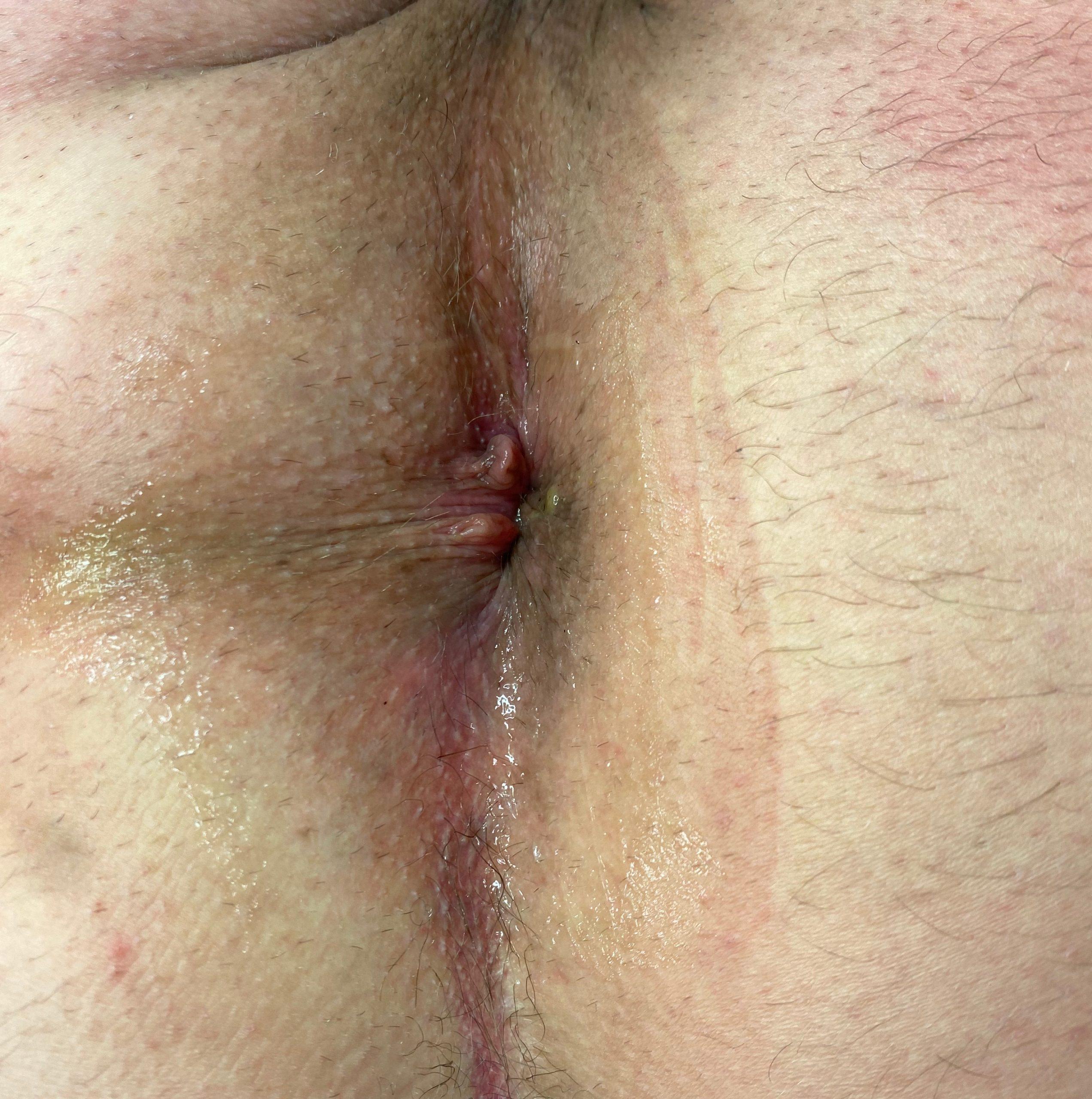 po operacji hemoroidow 4 stopnia